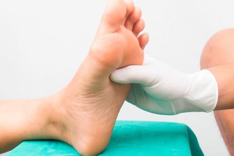 callos en los pies que rompen la diabetes